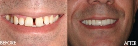 Before & After Teeth Fixing
