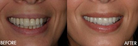 Before & After Teeth Whitning