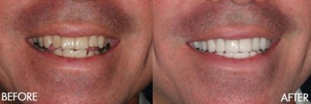 Before & After Teeth Whitning Treatment