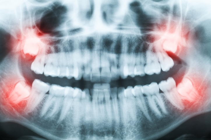 Closeup of x-ray image of teeth and mouth with all four molars vertically impacted and still not grown and visible in the jaw bone. Filled cavities visible. Impacted molars (wisdom teeth, teeth number 8) on the right side of the face (image left) shown red.