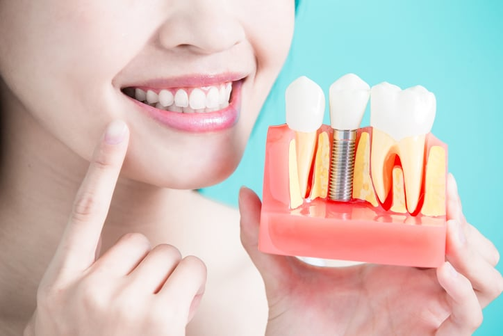 woman take tooth implant false tooth on green background