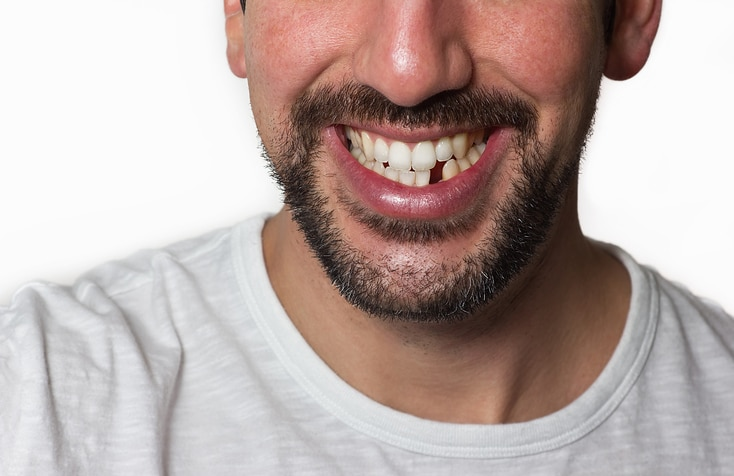 Close up on a man smiling while he is missing a tooth.