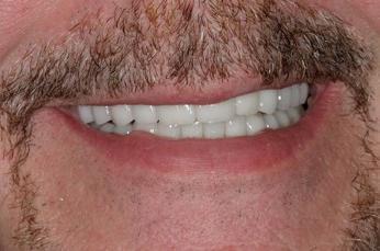 Dental Services Pickering